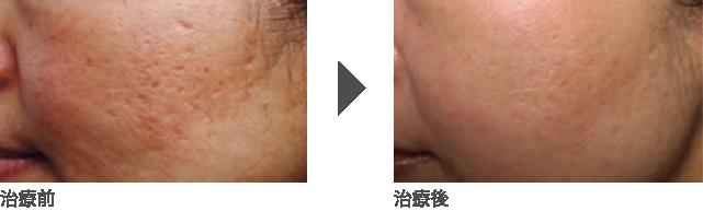 フラクショナルレーザー治療(毛穴・ニキビ跡凹み)30代後半 女性