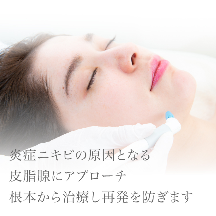 炎症ニキビの原因となる皮脂腺にアプローチ根本から治療し再発を防ぎます