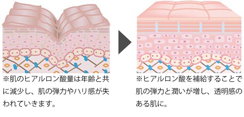 肌のヒアルロン酸量