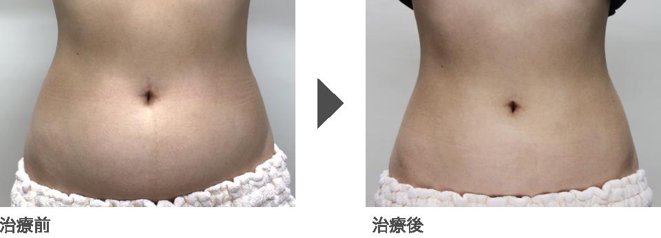 30代後半 女性:タカミ式脂肪溶解注射 太もも(内側) 3回/ボトックス注射 ふくらはぎ 1回 実施