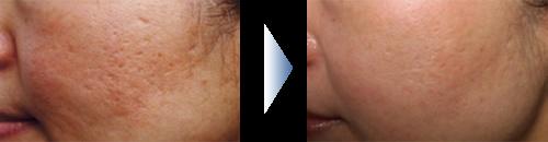 ニキビ、ニキビ跡の凹み治療  30代後半  女性